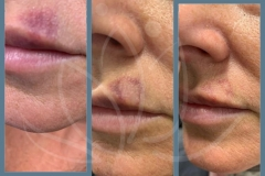 Post 2 treatments IPL for bruising post filler to lips