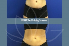 CoolSculpting Non Surgical Fat Reduction