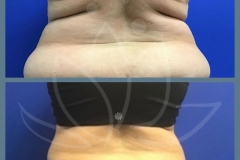 Coolsculpting-after-1-month-treatment-of-love-handles-Patient-lost-19-lbs.