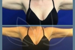 Coolsculpting-for-the-arms