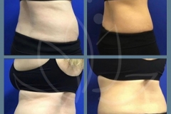 Coolsculpting-of-love-handles-after-5-months
