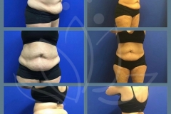 Coolsculpting-post-abdomen-and-love-handles-Patient-lost-19-lbs.