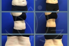Coolsculpting-treatment-after-5-months-Patient-lost-10-lbs.