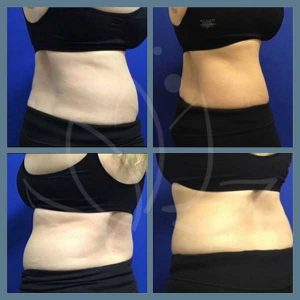 CoolSculpting-results-photos