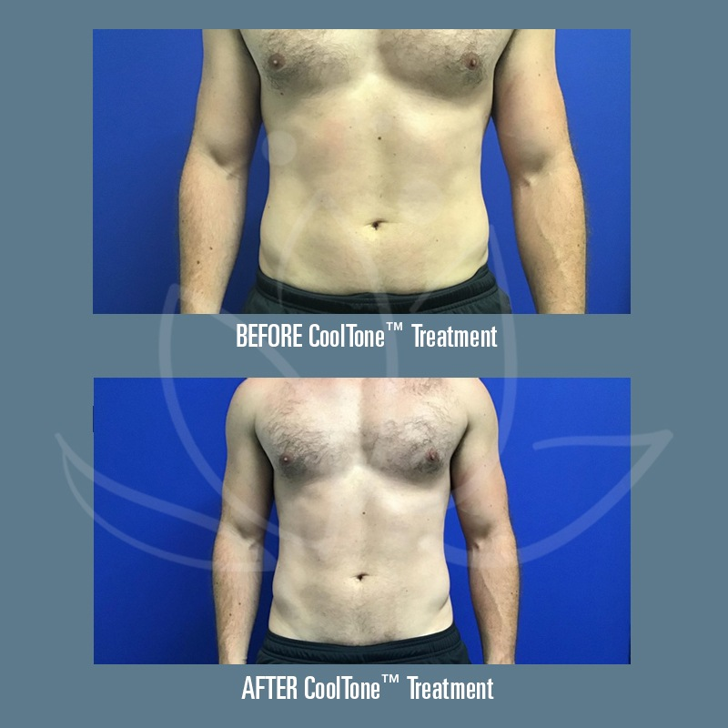 4 Facts About CoolTone™ Muscle Toning